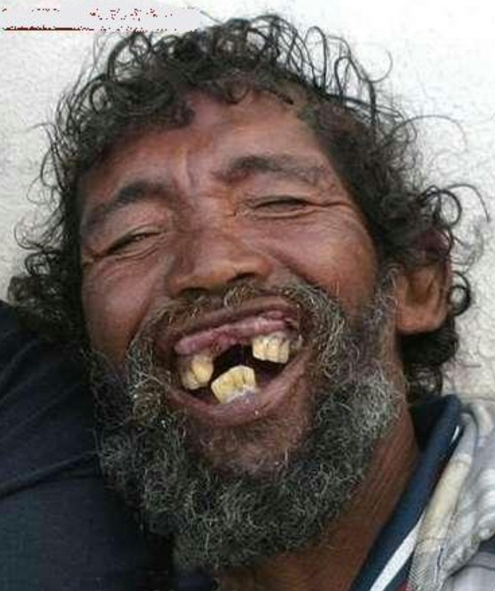 funny pics ugly people